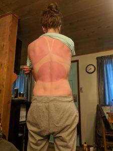 Leah Harris' 10K sunburn!